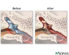 Before, During and After Surgery to Insert Ear Tubes: When is a Myringotomy Necessary Eustachian Tube Dysfunction, Ear Tubes, Middle Ear, Operation, After Surgery, Ear Infection, For Your Health, Life, Septum