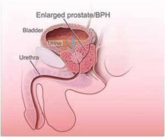 Two inherited-genetic mutations are linked to the development of aggressive prostate cancer, shows study published in the  Proceedings of the National Academy of Sciences .