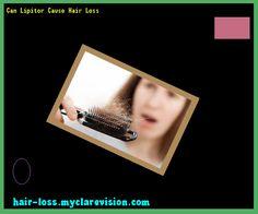 Can Lipitor Cause Hair Loss 090353 - Hair Loss Cure!