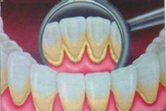 Zahnstein natürlich verhindern