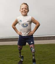 Cody McCasland:    Challenge: Born with Sacral Agenesis which resulted in missing his tibias and knees, Cody's legs were amputated through the knee when he was just 15 months old.    Perseverance: Cody inspires countless people by showing them what is possible, even at a young age. He is an active fundraiser, spokesperson and athlete who aspires to be a Paralympic swimmer.    Read his story here…
