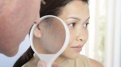 Rosacea, quando il rossore del viso nasconde una malattia | Ok-Salute