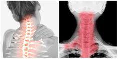 Ak máte sedavý životný štýl, menej pohybu a fyzickej aktivity, môžu sa u vás objaviť známe problémy s chrbticou. Bolesťou medzi lopatkami, ktorá vystreľuje až do ruky či hlavy. Fyzioterapeut poradil, ako sa ich čo najrýchlejšie zbaviť. Lava Lamp, Lens, Table Lamp, Health, Necklaces, Table Lamps, Health Care, Klance, Lentils