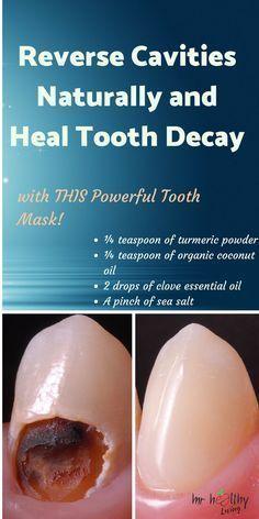 Natural Home Remedies tooth teeth heal tooth decay tooth ache relief tooth cavity remedies tooth cavity remedies oral health oral health Natural Health Tips, Natural Health Remedies, Natural Cures, Natural Beauty, Herbal Remedies, Natural Healing, Natural Cavity Remedy, Cough Remedies, Holistic Remedies