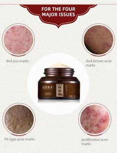 Clear everything: acne marks, acne pits, old scars * Deep smooth repair and relieves dry rough skin * Ingredients: Avocado, Sodium Hyaluronate Joboa Seed Oli, Pectin, etc Scar Removal Cream, Acne Marks, Avocado, Eyeshadow, Smooth, Deep, Eye Shadow, Lawyer, Eye Shadows