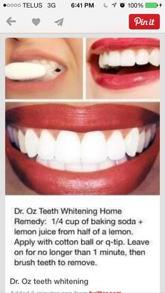 Teeth whitening ideas!
