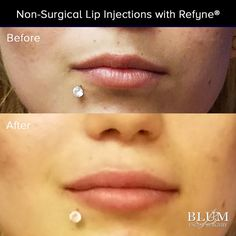 Dr. Blum now offers Refyne to patients for beautiful, lucious lips in a matter of minutes. Call for #lipfiller specials today (866) 598-4453