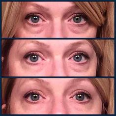 before after eyes Before/After photos using Instantly Ageless lifting the eyes, removing the bags,. Before/After photos using Instantly Ageless lifting the eyes, removing the bags, smoothing out the wrinkles www. Facial Before And After, Ageless Cream, Under Eye Bags, Before After Photo, Wrinkle Remover, Vegan, Anti Aging Skin Care, Health And Beauty, How To Remove