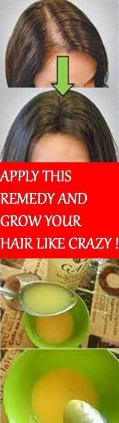 LEAVE ALL DOCTORS SURPRISED. APPLY THIS REMEDY AND GROW YOUR HAIR LIKE CRAZY ! #scalpdetoxcleanses