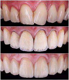 Step By Step Layering Of Composite Veneers Composite Veneers Dental Veneers Dental Adhesive