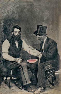 Bloodletting in 1860, One Of Only Three Known Photographs Of The Procedure.  Partially colorized.