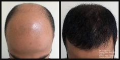 After and before picture hair transplant. Före och after bilder FUE hårtransplantation. Visit: http://www.fuehartransplantation.com