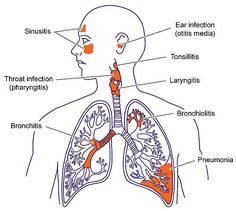 Upper and Lower Respiratory Tract Infections   Respiratory Tract Infections