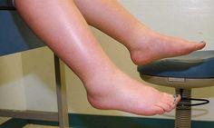 Bacaklardaki ödem genellikle kadınları erkeklerden daha çok etkiler, yaz aylarında yaygındır ve kan dolaşımı problemleri ile ilişkilendirilebilir.