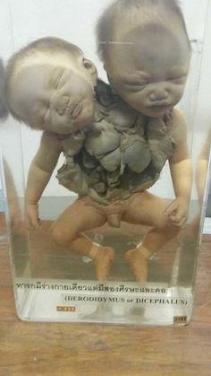 Siriraj Medical Museum in Bangkok /A rare medical condition.