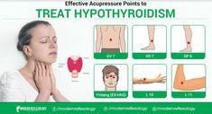 Acupuncture Points, Acupressure Points, Health And Beauty Tips, Health And Wellness, Holistic Treatment, Neurology, Qigong, Hypothyroidism, Acupuncture