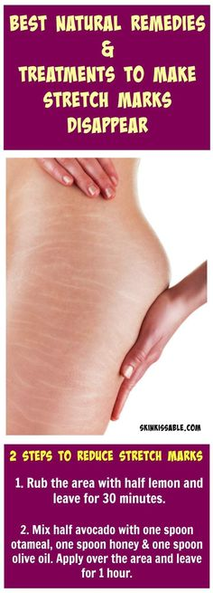 How to get rid of stretch marks with remedies and tips.