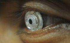 Cligner des yeux ou regarder autour de soi produit un signal électrique que des chercheurs de San Diego sont parvenus à mesurer, puis à utiliser pour commander une lentille souple biomimétique. Résultat, en clignant de l'oeil, il devient possible de zoomer, puis de dézoomer.