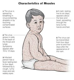 childhood diseases - Google Search