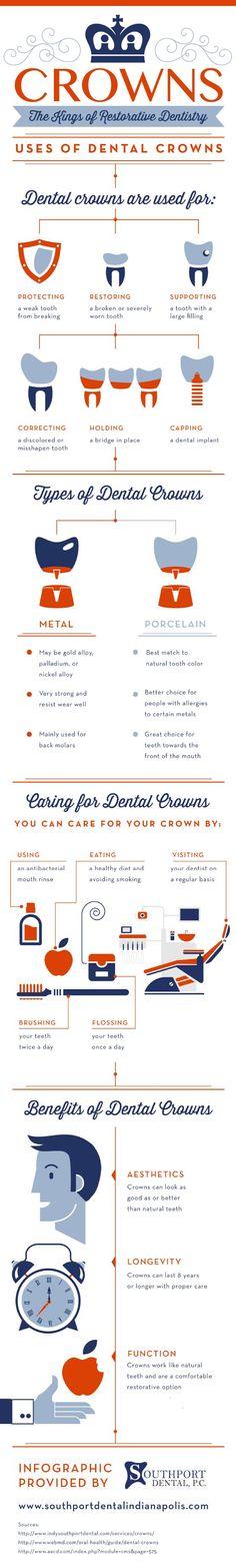 Crowns: The Kings Of Restorative Dentistry #FrandsendDental