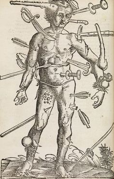 L'homme blessé _ 1530
