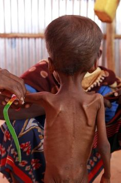 The drought and famine in the horn of Africa has killed more than 29,000 children under the age of 5 in the last 90 days in southern Somalia alone.