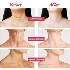 This Of Anti-Aging/Anti-Wrinkle Whitening Neck Mask has what you need to have firmer, more youthful looking neck. Beauty Tips For Face, Beauty Skin, Face Tips, Beauty Ideas, Beauty Makeup, Beauty Hacks, Natural Remedies For Rosacea, Neck Wrinkles, Whitening Skin Care
