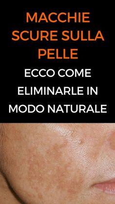 Macchie scure sulla pelle: Ecco come eliminarle in modo naturale