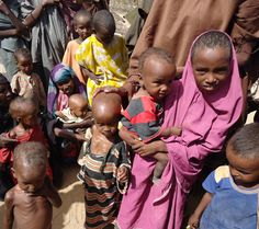 Somalia - 50,000 children starving with hunger and thirst