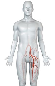 An aneurysm occurs when the wall of an artery is weakened and bulges due to the blood pressure on the weakened wall artery. This weakened area can rupture and cause internal bleeding. Abdominal Aortic Aneurysm, Turner Syndrome, Bypass Surgery, Smoking Cessation, Blood Vessels, Ultrasound, Medical Conditions, Trauma, Group