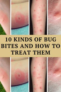 Bug bites are annoying, but thankfully, they usually aren't dangerous. Treating them is often much more about treating itching and pain than actually stopping anything dangerous from spreading.