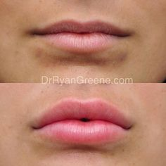 This very nice patient came to me desiring fuller lips with  She had noticeable volume deficiency and flattening of the lips. In her case, I utilized a special technique I developed to naturally roll her lips outward. Facial Fillers, Botox Fillers, Dermal Fillers, Lip Fillers, Botox Lips, Lip Injections Juvederm, Restylane Lips, Hyaluron Filler, Lip Tips