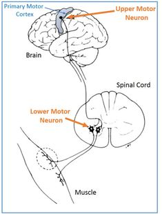 Multipolar motor neuron human anatomy pinterest 02162017upper and lower motor neuron diagram ccuart