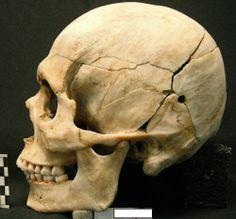 Reconstructed male skull with a GSW, left inferior parietal.
