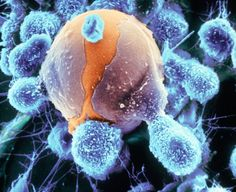 An invader cell (orange) is surrounded by macrophages (blue) whose function is to engulf and digest such invader cells. (via)