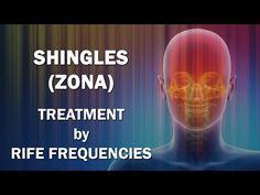 Shingles (Herpes Zoster - Zona) - RIFE Frequencies Treatment - Energy & Quantum Medicine - https://www.youtube.com/watch?v=jkgGzwgtJsg