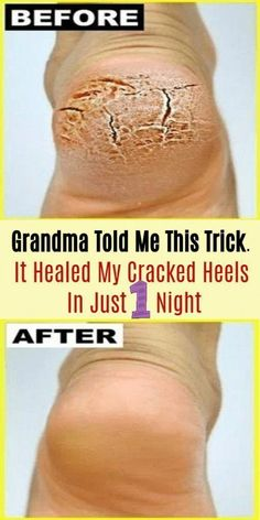 Grandma Told Me This Trick. It Healed My Cracked Heels In Just 1 Night - Healthy Tips World Heal Cracked Heels, Cracked Feet, Cracked Heel Relief, Cracked Heel Remedies, Natural Health Remedies, Home Remedies, Herbal Remedies, Beauty Care, Beauty Hacks