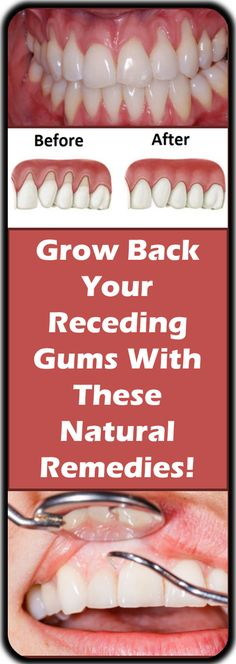 If you are experiencing receding gums then you have found a great article to read. In this article you will find 9 of the best home natural remedies to help grow back your receding gums. Your gums are not something … Teeth Health, Oral Health, Dental Health, Health Diet, Health Care, Dental Care, Remedies For Tooth Ache, Sore Gums Remedy, Natural Cold Remedies