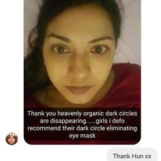 This beauty has been using our eye products in order to get rid of her dark circles.  She has experienced outstanding results as it has brightened her eyes and her dark circles are disappearing.  #eye #eyebags #darkcircles #darkeyes #eyes #nomoredarkcircles #glow #skinglow #lookamillion #loveyourself #herbalife #herbal #organic #organiclife #organicliving #organicskincare #natural #naturalskincare #naturalbeauty #dubai #dubailife #london #china #hudabeauty #zukreat Natural Beauty from…