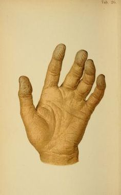 Immersion changes to the hand (after 24 hours in this case) - Atlas of legal medicine (von Hofmann 1898).