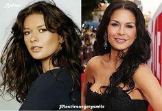 Catherine Zeta Jones Plastic Surgery Before And After #CatherineZetaJones #plasticsurgerysmile #beforeandafter