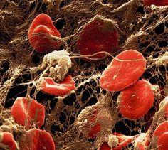 Al microscopio SEM y coleado un coágulo con glóbulos rojos atrapados en una red de fibrina. Imagen de Pearson Education