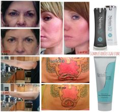 Before and after picture!  Customer using Nerium's Firm  day  night creams. - contact me for details  www.dilachapelle.nerium.com