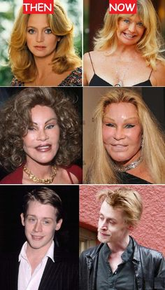 23 Terribly Aging Celebrities Then And Now Photos, Goldie Hawn Then And Now, Jocelyn Wildenstein Then And Now, Macaulay Culkin Then And Now. vorher nachher 23 Terribly Aging Celebrities Then And Now Photos Celebrities Before And After, Celebrities Then And Now, Famous Celebrities, Kendall Jenner Plastic Surgery, Celebrity Plastic Surgery, Then And Now Photos, Stars Then And Now, Emilia Clarke Hot, Celebs Without Makeup