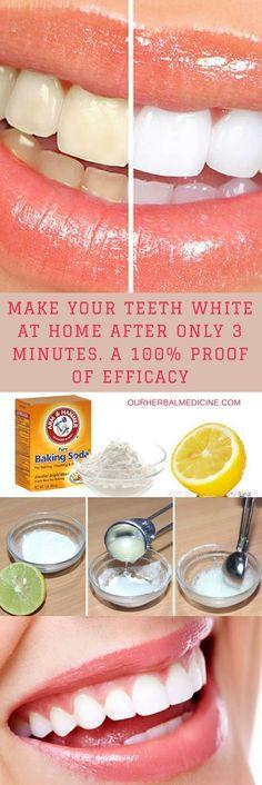 Best Teeth Whitening Treatment for 2019 - Saude Bucal Natural Teeth Whitening, Whitening Kit, Teeth Whiting At Home, What Causes Warts, Warts On Face, Baking Soda Shampoo, Dry Shampoo, Honey Shampoo, Clarifying Shampoo