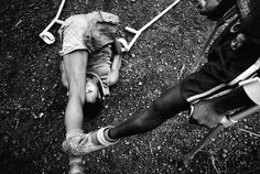 """Pep Bonet. """"One Goal - Amputees football field at the MSF camp (Murray Town) stretching before the match - Sierra Leone's amputees are a grim legacy of its 1991-2001 civil war. One of the most brutal aspects of the conflict was the use of amputation..."""