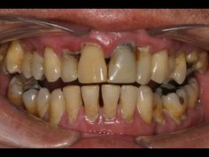 Как лечить пародонтоз и удалить зубной камень в домашних условиях. - YouTube
