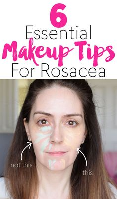 6 Essential Makeup Tips For Rosacea - 15 Minute Beauty Fanatic If you have redness on your face, it can be difficult to hide. Here are my makeup tips for rosacea! Face Makeup Tips, Best Makeup Tips, Beauty Tips For Face, Best Makeup Products, Beauty Hacks, Beauty Care, Face Tips, Makeup Hacks, Latest Makeup