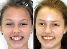 114 Incredible Before & After Transformations Of People Who Wore Braces Before And After Braces Teeth After Braces, Braces Before And After, Braces Smile, Braces Off, Dental Braces, Dental Veneers, Dental Care, Braces Transformation, Wisdom Teeth Pulled