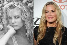 20 Worst Cases Of Celebrity Plastic Surgery Gone Wrong, Destroyed Their Looks! | Sticky Day | Page 9